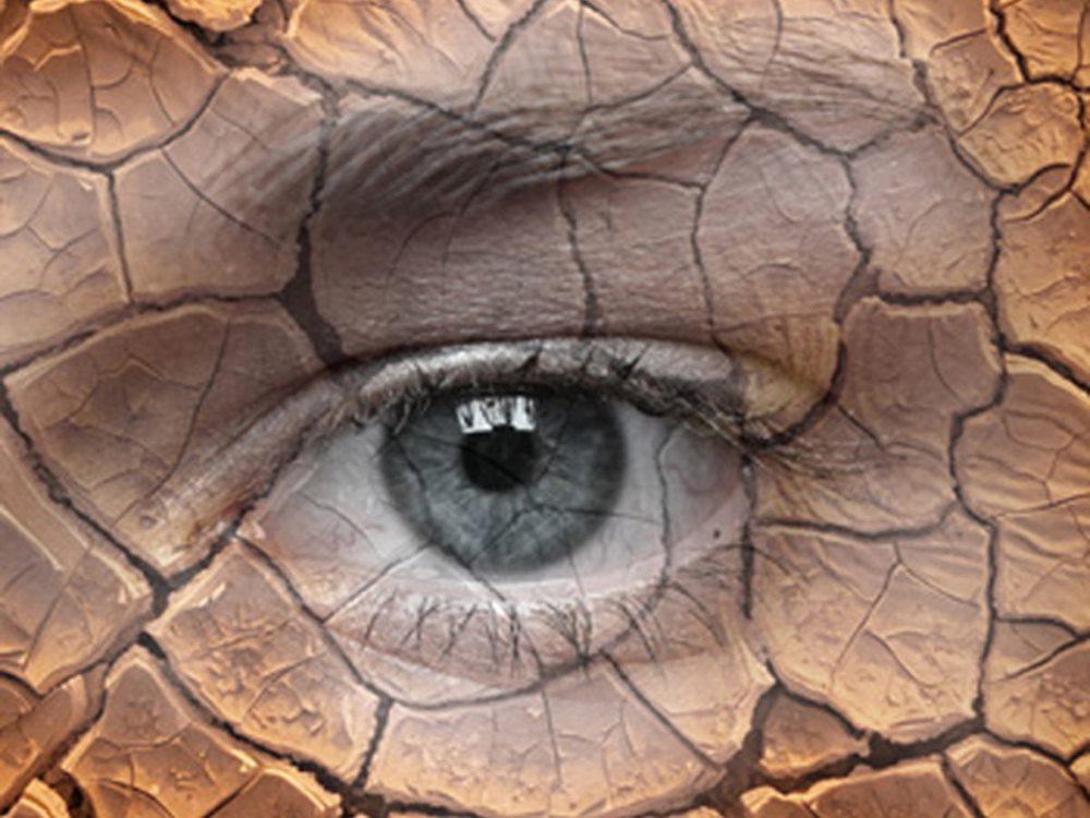 Stress oxy hóa làm tổn thương tuyến lệ đạo gây bệnh khô mắt